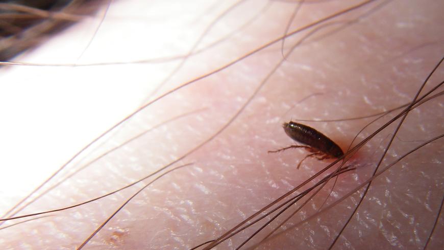 Flea Bites and Prevention